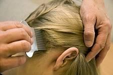 kammen van haren met luizenkam